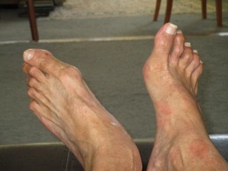 David and Glenda's feet 003-A
